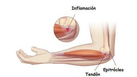 Tratamiento para las lesiones de codo en escalada